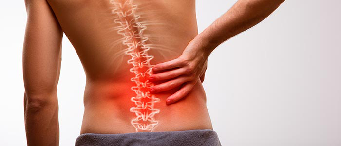 Chiropractic Silverdale WA Spinal Decompression